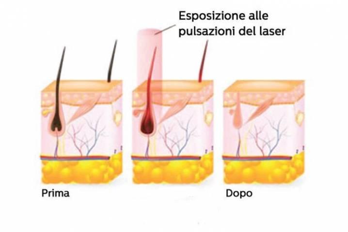 laser a diodo